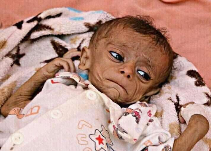 8b2aa-starving_child_in_yemen_181021